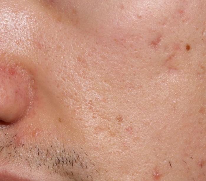 varicella cicatrici